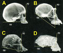 Comparaison radiographique des cränes de Toumaï, de l'Homo sapiens, du chimpanzé et d'un australopithèque