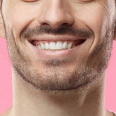 tips sonrisa radiante