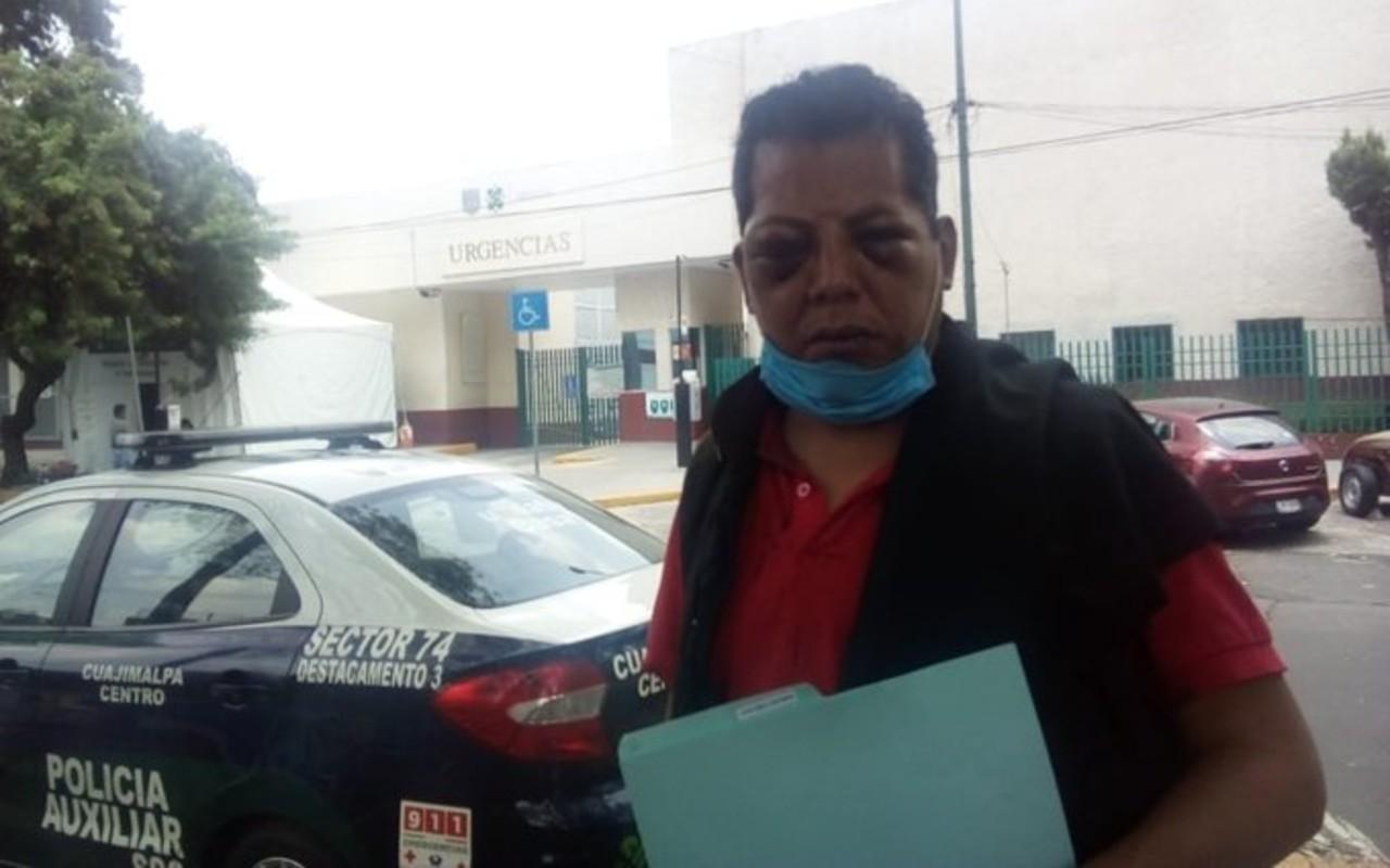El imitador de Juan Gabriel Oscar Maldonado sufrió un ataque homofóbico durante un show