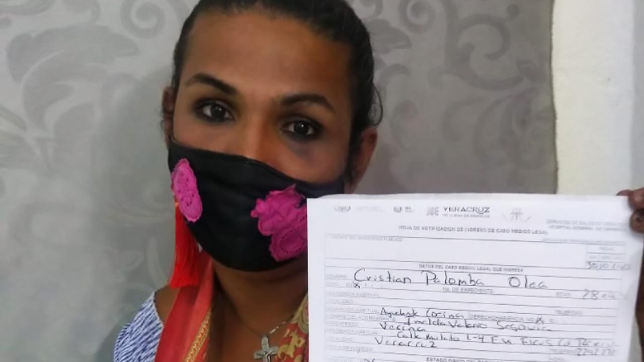 veracruz mujer transgenero victima machetazos
