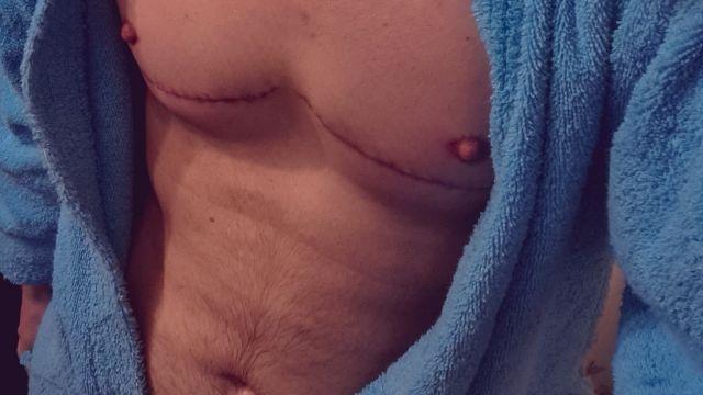 trans decidir cuerpo mastectomia