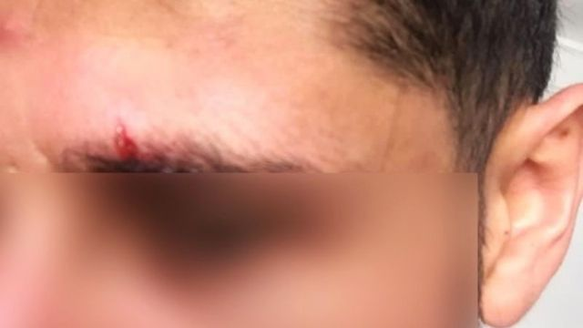 Ataque homofóbico en Playa del Carmen Quintana Roo