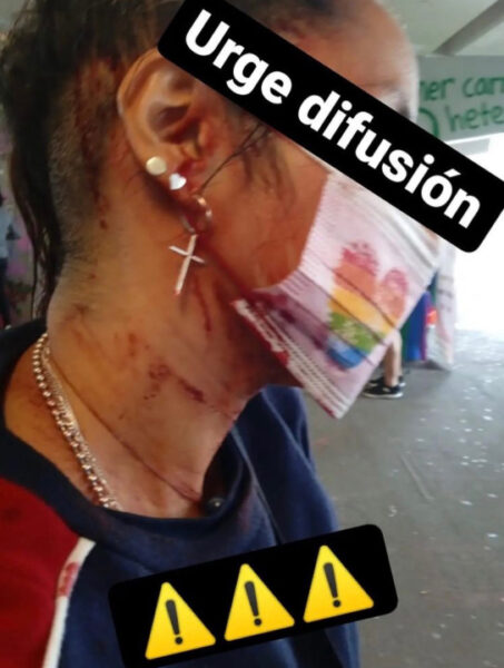 la tianguis disidente lgbt glorieta de los insurgentes agresión