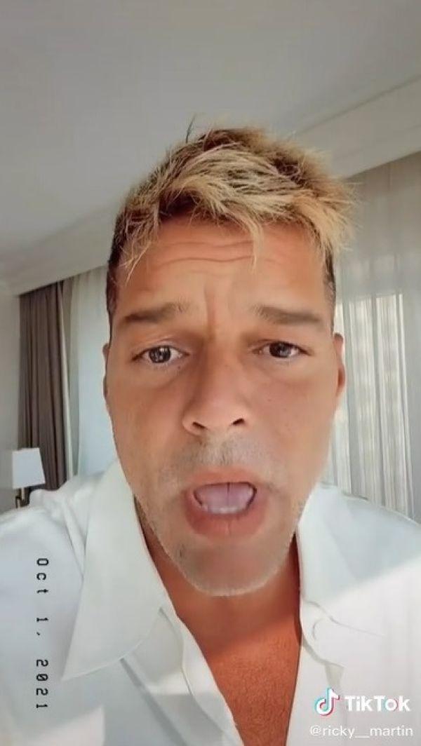 Ricky Martin muestra que no se hizo operación