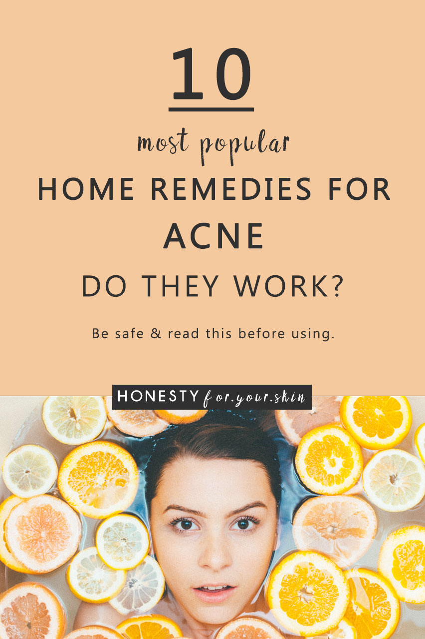 A huge amount of home remedies for acne are like using a power-hose to spot treat a teeny-tiny pimple. Imagine that. Pimple gone, but so is your skin. Instead the best home remedies for acne harness the natural power of gentle kitchen-cupboard-found ingredients. Come take my hand to find out which are a go and which are a no...