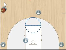 Triple Ball Screen Set