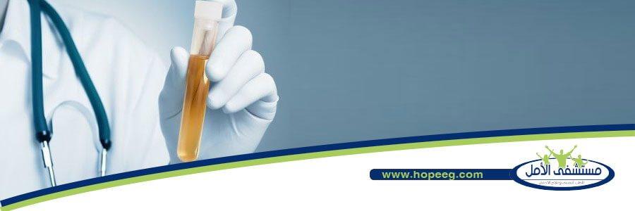 5 عوامل تؤثر على مدة بقاء الحشيش في البول تعرف عليها