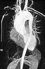 https://i1.wp.com/www.hopkinsvasculitis.org/wp-content/uploads/2010/05/organs.jpg