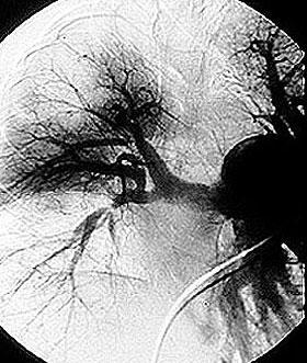 https://i1.wp.com/www.hopkinsvasculitis.org/wp-content/uploads/2010/05/pulmonary.jpg