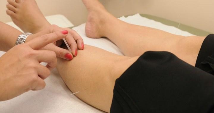 La acupuntura: qué es y cuáles son sus beneficios
