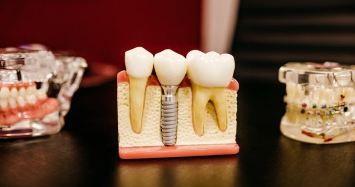 ¿Cuáles son los servicios más demandados que podemos encontrar en una clínica dental en Madrid?