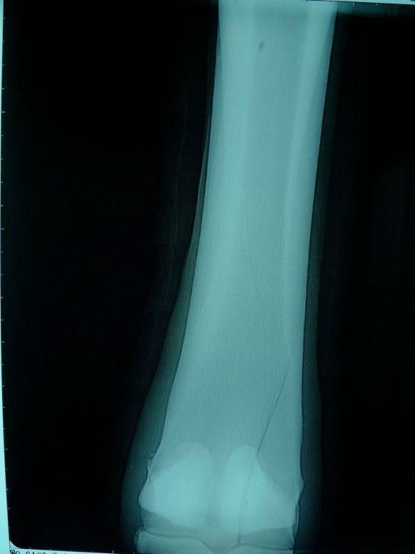 馬の骨折例