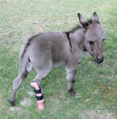 Emma and her second prosthesis. Her growth required reduction of the height of the overall prosthesis and lengthening of the height of the foot to keep her level.