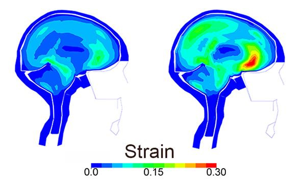 The image on the right indicates the level of strain on brain tissue after an actual bike crash; the image on the left shows what the strain would have been if a helmet was worn.