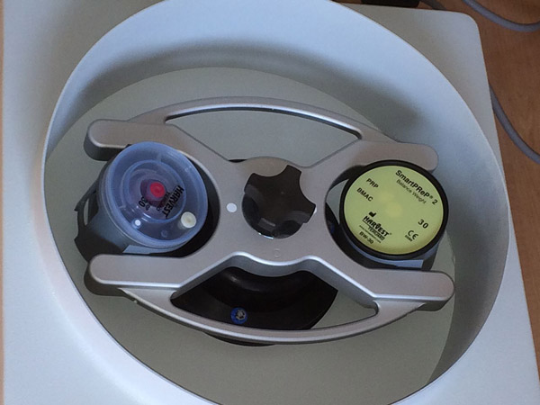 Whole blood placed in a centrifuge. Photo: Pradeep Albert MD CC BY-SA 3.0 via Wikimedia Commons