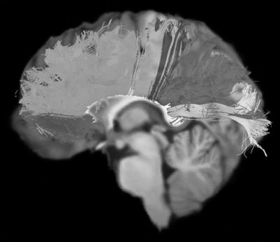 Sagittal view of the callosal fiber tracts from a control subject overlaid over her individual reference image. Representation of the divisions of the corpus callosum comprising bundles projecting to the prefrontal lobe, premotor and supplementary motor areas, primary motor cortex, primary sensory cortex, parietal and temporal lobe, and occipital lobe.