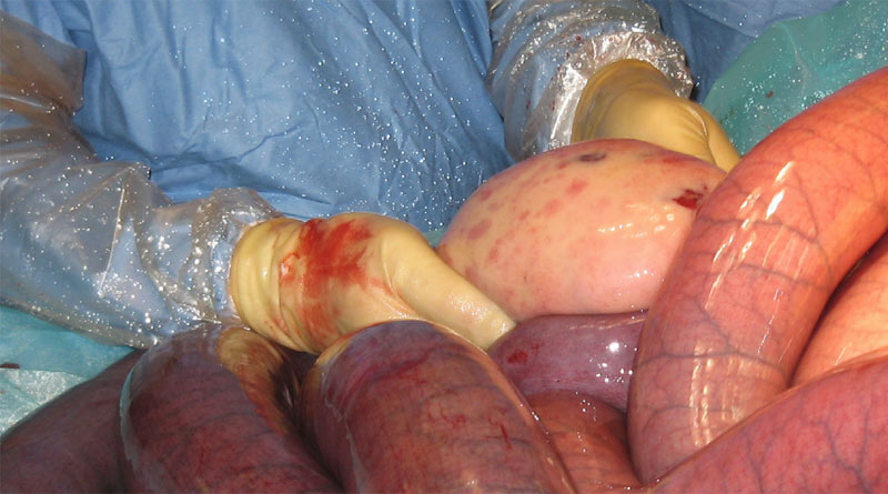 Colic surgery for a small intestinal strangulation by a lipoma (fatty mass). The surgeon is holding the lipoma.