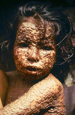 This young girl in Bangladesh was infected with smallpox in 1973. The country was declared free of the disease in 1977. Photo: CDC/James Hicks (Public domain), via Wikimedia Commons