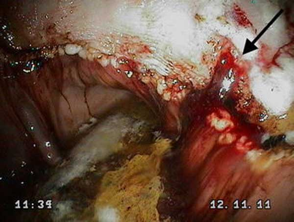 Clinically significant gastric lesions in a foal 14 days after weaning, characterised by deep ulceration in the squamous epithelium and acute haemorrhage (black arrow). Its blood sucrose concentration meant this foal would have been correctly identified as positive for equine gastric ulcer syndrome using the blood sucrose test. Photo: Hewetson et al. https://doi.org/10.1186/s13028-018-0377-5