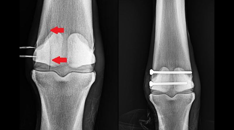 The scan image at left shows a condylar fracture of the right leg. At right shows the screws inserted during surgery. This patient, a Thoroughbred racehorse, walked away from surgery comfortably and is recovering well.