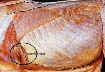 The cutaneous trunci, which has been moved in this picture, is quite thick.One inch is average, up to two inches in some places.