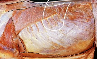 If one wants to place the saddle behind the trapezius thoracis, they will have to place the saddle a long way back