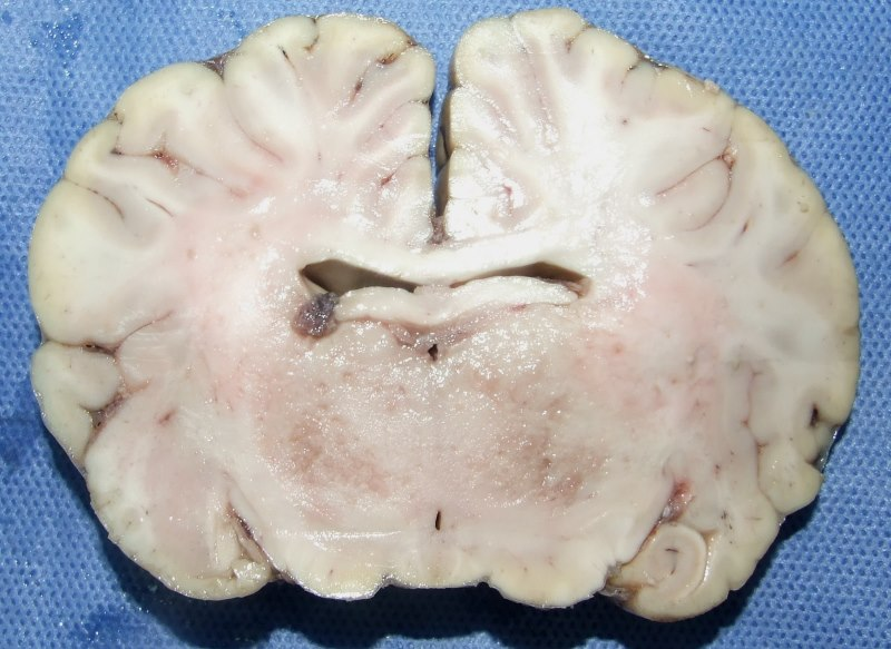 A brain section from the infected mare at the level of the thalamus, showing small areas of malacia - an abnormal softening of the tissue. Photo: Noiva et al. ttps://doi.org/10.1002/vms3.142.