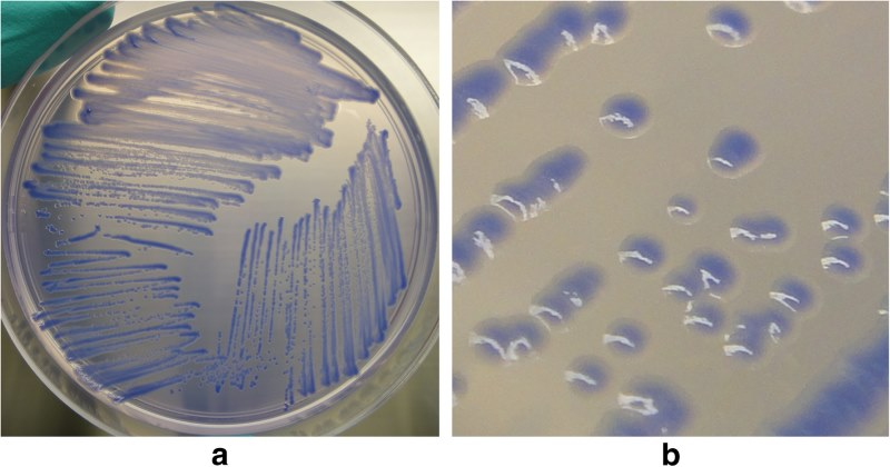Researchers receive got taken a stride forrad inward identifying the bacterium behind ane of the most  Scientists' novel lab recipe helps inward diagnosing glanders