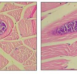 Neospora caninum tissue cysts in the skeletal muscles of the front limb of one of the donkeys: (a) transverse section; (b) longitudinal section. Images: Tirosh-Levy et al. https://doi.org/10.3390/ani10101921