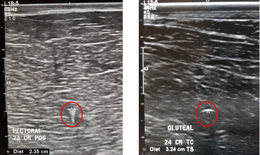 Ultrasound images of the right pectoral muscle, left, and right gluteal muscle with a microchip (red circle) within the muscle.