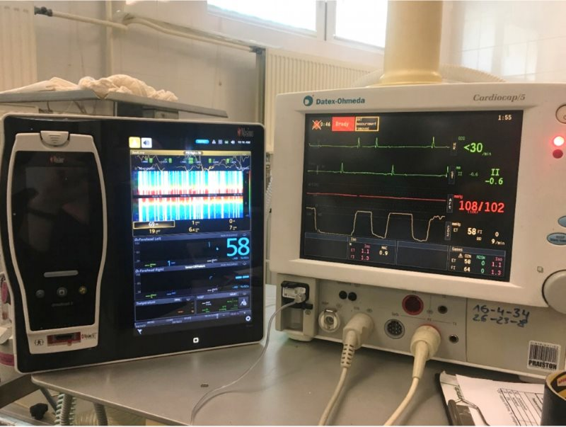 A multifunctional patient monitor, at right, used routinely during anaesthesia; and the monitor for brain oximetry measured with near-infrared spectroscopy, on the left.
