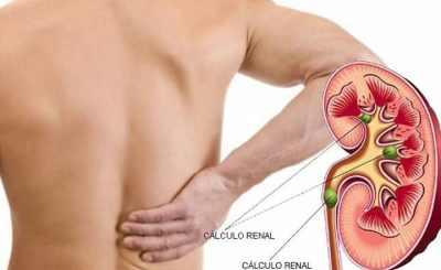 Cálculos renales de calcio son los más comunes y afectan más a varones