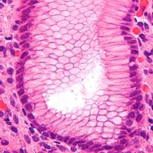 Gastritis, inflamación aguda o crónica de la mucosa estomacal