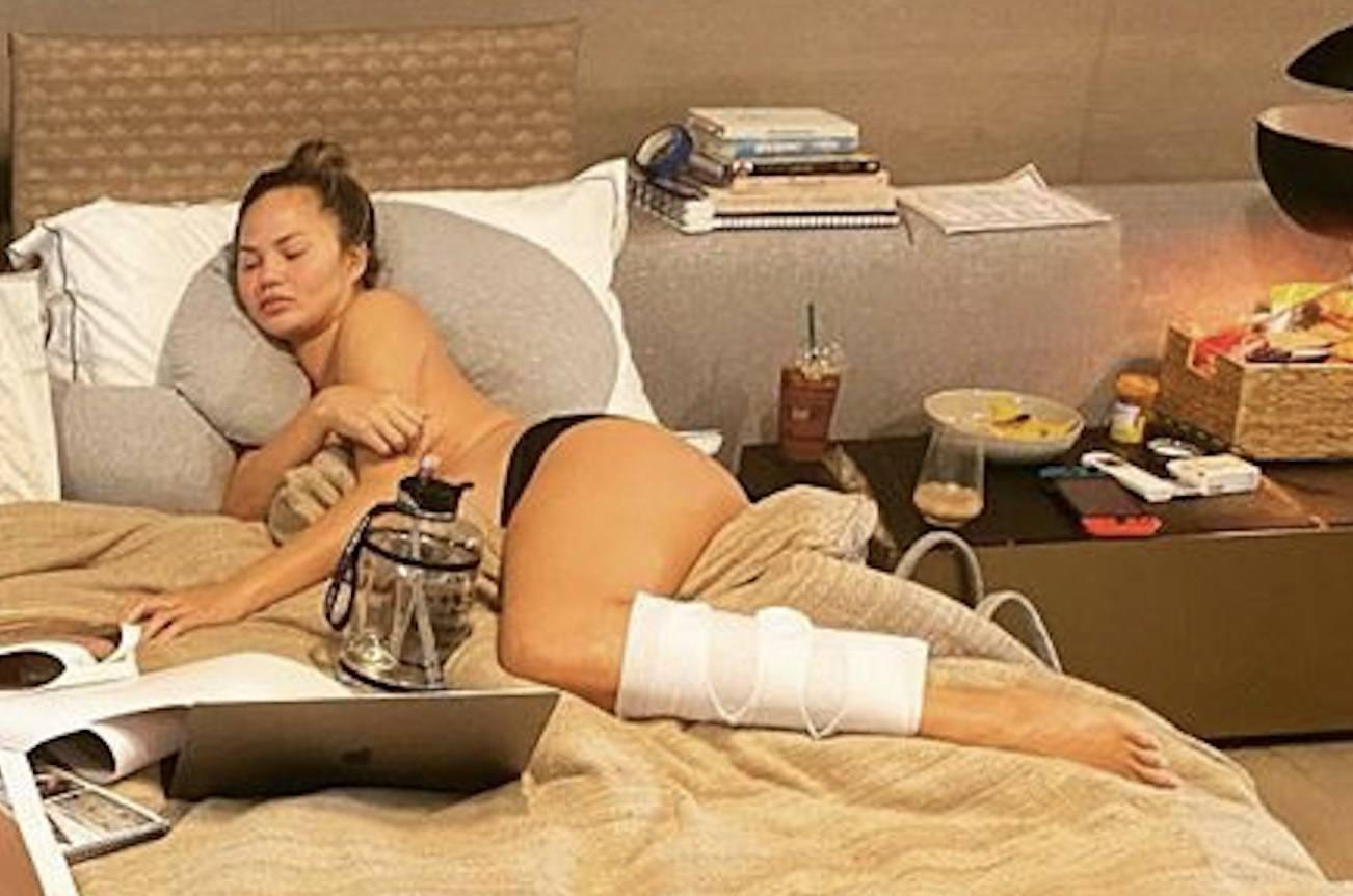Chrissy Teigen Topless