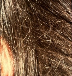head lice nits pictures and how to rid of head louse nits