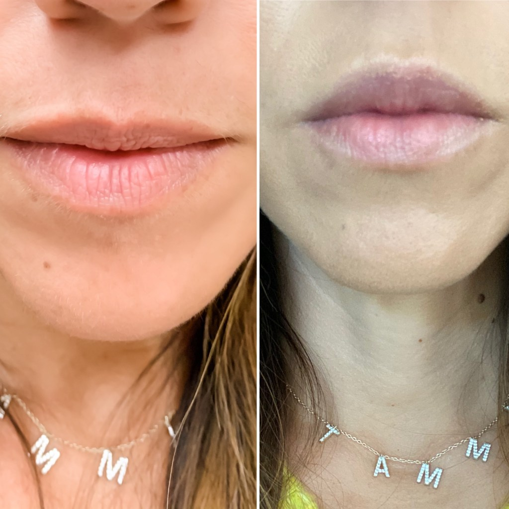 What You Need To Know About Cosmetic Medicine by top US beauty blog, House of Leo Blog: cosmetic medicine, photo of lip fillers before and after