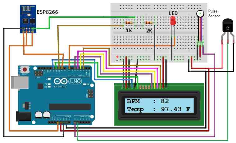 IoT Based Patient Health Monitoring System Circuit Diagram