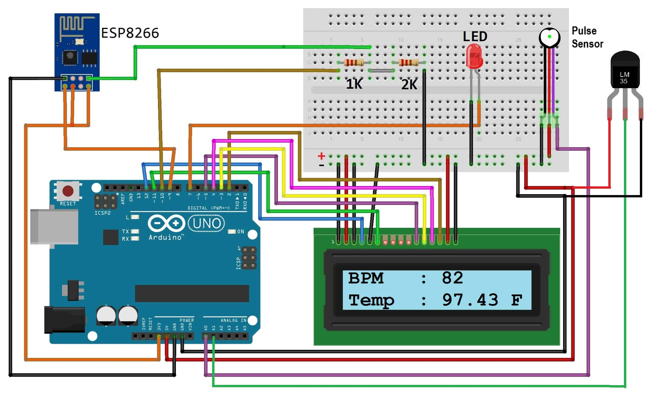 IoT Based Patient Health Monitoring System using ESP8266