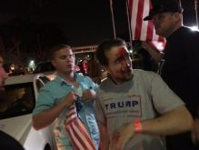 Trump-Supporter-Bloodied-Pearce-Twitter-575x431