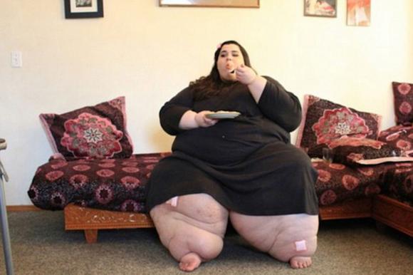 Amber ha perso 260 chili, passando da 330 a 70. Una trasformazione choc. LE FOTO