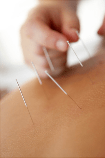 Acupuncture Can Help with All That?!