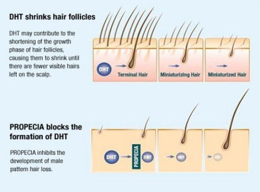 FDA approved drug - hair loss Hair Loss Treatment