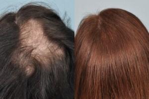 hair transplant long hair