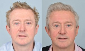 louis-walsh-before-after-testimonial