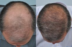 Hair restoration results - before and after treatment at HRBR