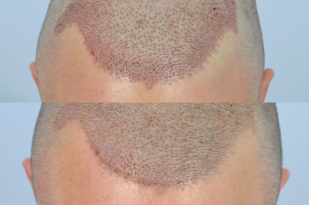 does a hair transplant hurt?