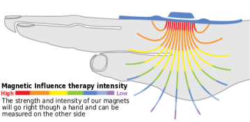 magnetic-influence-therapy-intensity