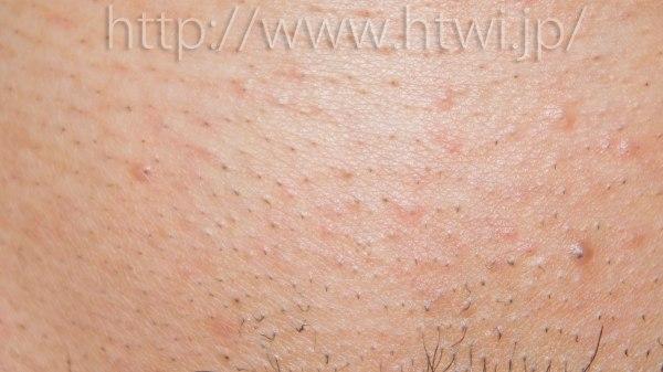ケノンVライン脱毛効果検証3回目の写真