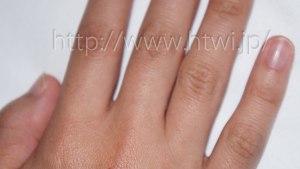 ケノンで手の指の脱毛効果を検証