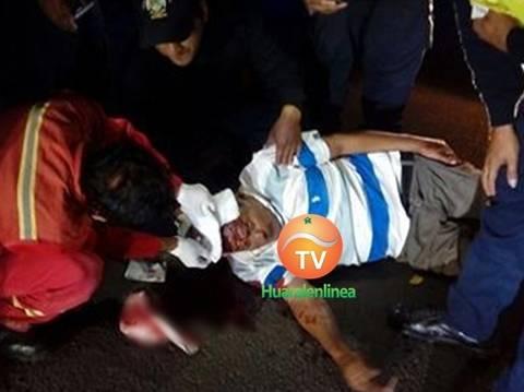 Violento asalto deja anciano con con la cabeza rota en Jesus del Valle Huaral